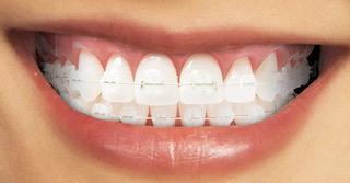 apparecchi-ortodontici-fissi-2