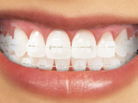apparecchi-ortodontici-fissi-home