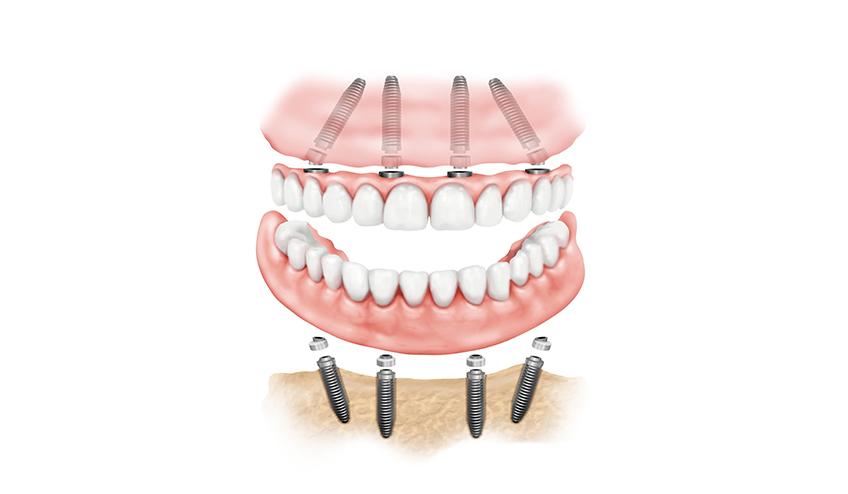 impianti-dentali-848x494