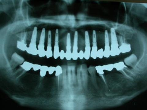 implantologia-home