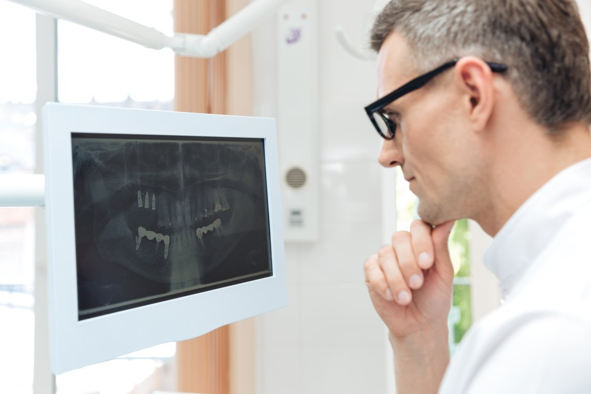 male-dentist-looking-teeth-on-digital-x-ray-PLUZ79S (FILEminimizer)