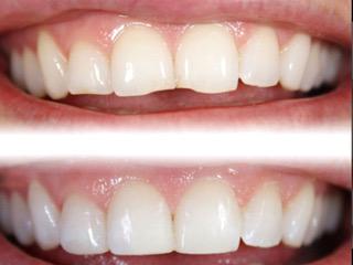 odontoiatria-estetica-2